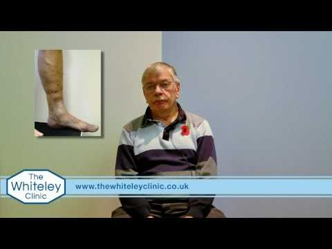 Venous eczema and varicose veins treated by The Whiteley Protocol®