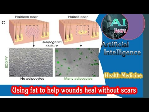 AI - Using Fat to Help Wounds Heal Without Scars