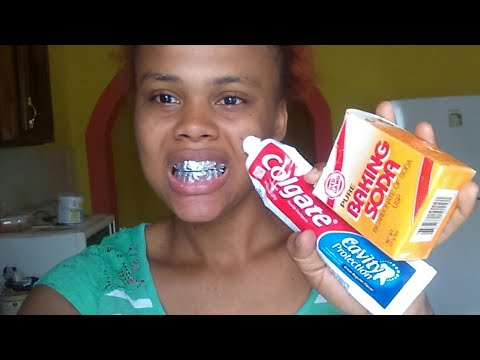How I Whitten my teeth using baking soda and toothpaste