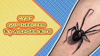 Download popping a cyst that got infected by a spider bite cystic pus huge cysts Video