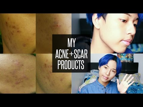 ACNE SCAR FADING PRODUCTS & TIPS | FISHMEATDIE