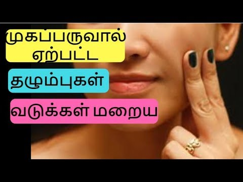 How to Remove Pimple/Acne Marks& Scars from Face   Pimple Marks Home Remedies   Beauty tips in Tamil