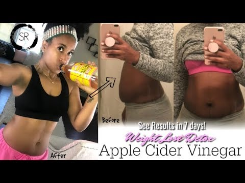 LOSE 10 POUNDS IN 7 DAYS! DRINKING APPLE CIDER VINEGAR WEIGHT LOSS DETOX | LOSE WEIGHT FAST