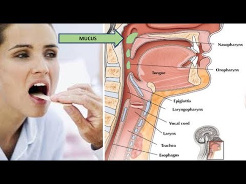 Natural Remedies Which Can Reduce The Phlegm & Treat Respiratory Infections