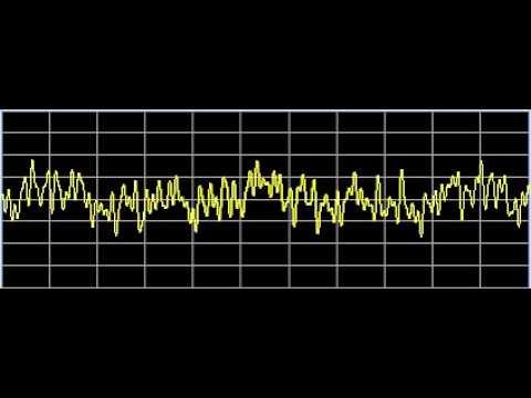 Thalamic Diseases - Rife Frequencies