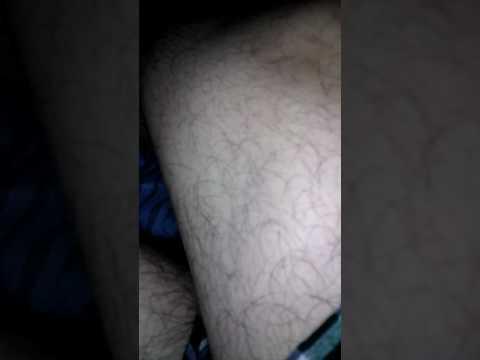 Leg Muscle Twitching
