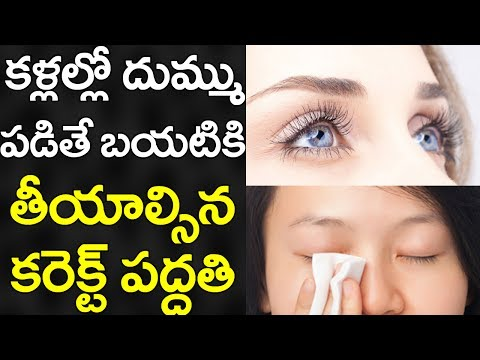 Which is the Most Healthiest Way to Clean Dirt From Your EYES? | Best Tips in Telugu | VTube Telugu