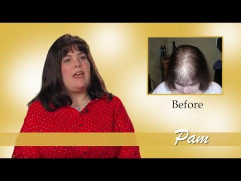 Polycystic Ovarian Syndrome Caused Pam to Lose Her Hair