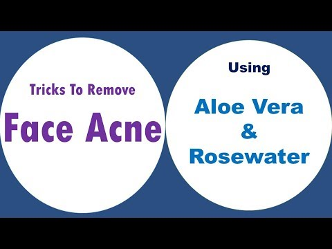DIY Tips To Use Aloe Vera And Rosewater For Acne - Tricks To Remove Face Acen