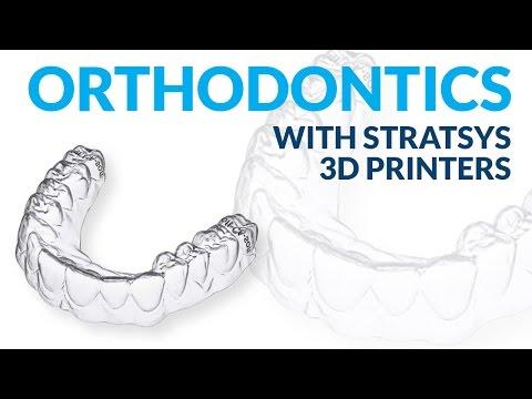 3D Printing in Orthodontics | Stratasys Digital Dental Workflow Solutions