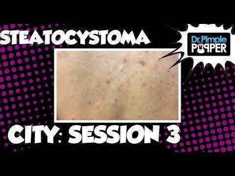 Steatocystoma City Session 3