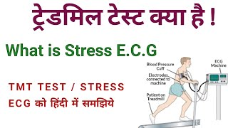 Download TREDMIILL TEST | TMT TEST IN HINDI | STRESS TEST | STRESS ECG| WHEN SHOULD YOU HAVE A STRESS TEST ?? Video