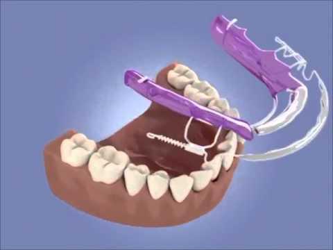 How Does Inman aligner braces work to straighten up teeth?