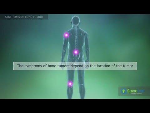Bone Tumor. Symptoms