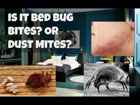 Is it Bed Bugs Or Dust Mites?   Problems Falling Asleep Because of Itchy Red Bites
