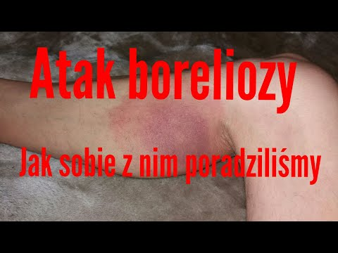 Atak boreliozy jak sobie z nim poradziliśmy:-)