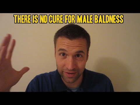 There is No Cure for Male Baldness or Receding Hairlines