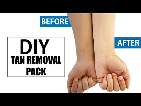 DIY: Natural Ways To Get Rid Of Sun Tanned Skin Instantly At Home | DIY Home Remedies