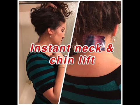 Instant cheap neck and chin lift