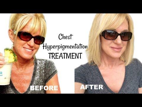 Get RID Of Chest HYPERPIGMENTATION & Sun Damage!