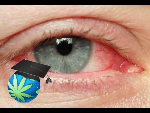 How To Get Rid of Red Eyes & High FASTER