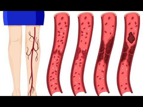 Natural Blood Thinners that Prevent Blood Clots