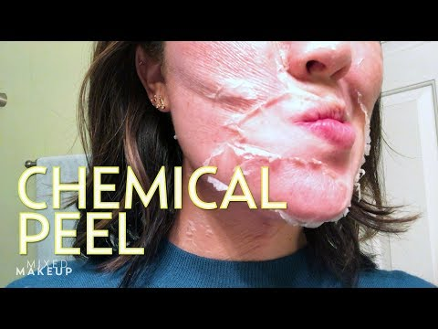 We Tried the Perfect Derma Chemical Peel! | The SASS with Susan and Sharzad