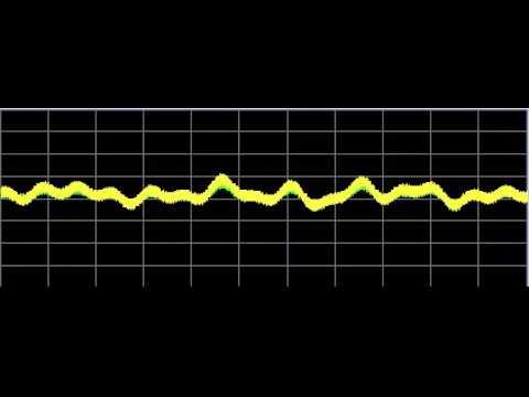 Hypothyroid - Rife Frequencies