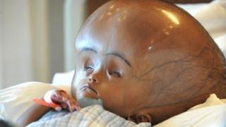 New Hope For Swollen Head Baby