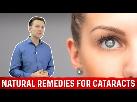 Natural Remedies for Cataracts