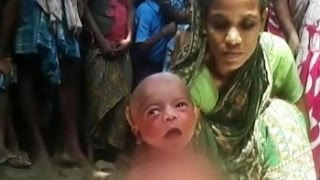Newborn forced to walk by witch doctor in Assam village as fever cure