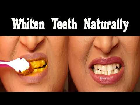 Causes Of Yellow Teeth- Ways To Get Whiter Teeth Fast At Home