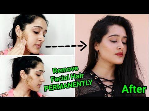 चहरे के अनचाहे बालों को हटाऐं | Permanent Removal of Facial Hair