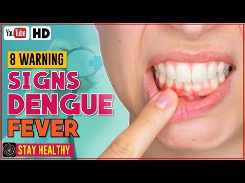 8 Warning Signs of Dengue Fever