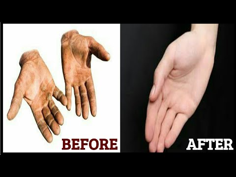 HOW TO REMOVE CALLUS... SIMPLEST WAY...