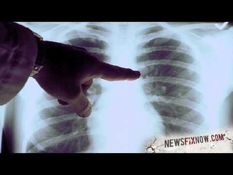 New tech turns smartphone into X-ray machine