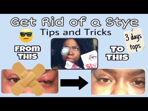 How to get rid of a stye/cold sore (overnight)