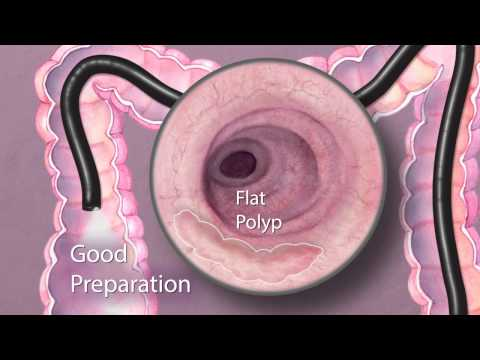 The Importance of Good Bowel Preparation During Colonoscopy