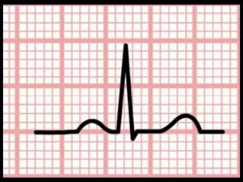 ECG Calculation