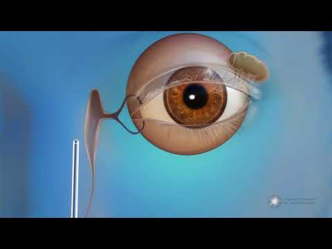 What is endoscopic dacryocystorhinostomy (DCR) surgery for blocked tear ducts?