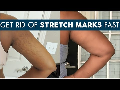 HOW TO GET RID OF STRETCH MARKS EASILY