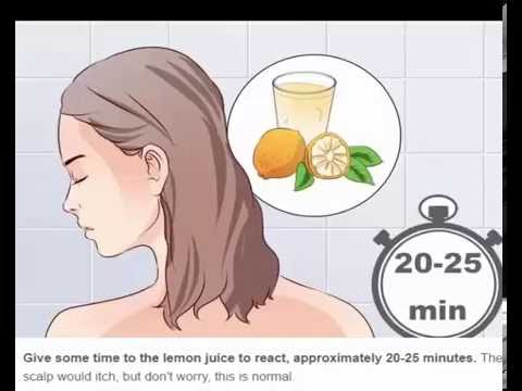 How to get rid of dandruff |How to Get Rid of Dandruff at Home: Naturally & Permanently!