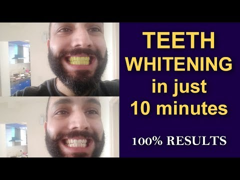 Get Whiter Teeth Naturally in 10 minutes | 100 % Guaranteed Result | हिंदी  में