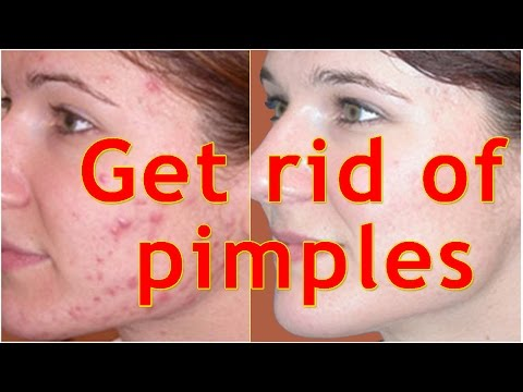 How to get rid of pimples fast and easily(top 5 home remedy tips)