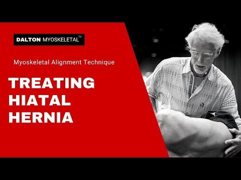Erik Dalton Treating Hiatal Hernia