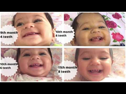 9 , 10 , 11 months old baby teething update | Progression videos incl break through