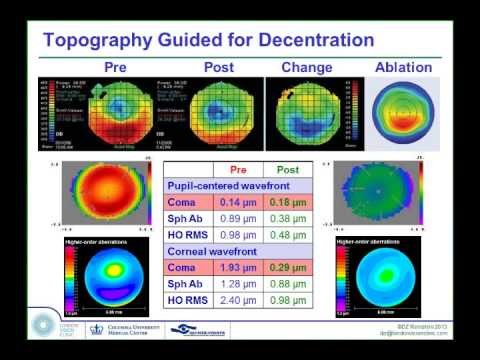 LoVC Course on Therapeutic Corneal Refractive Surgery Part 3 (of 6): Decentration