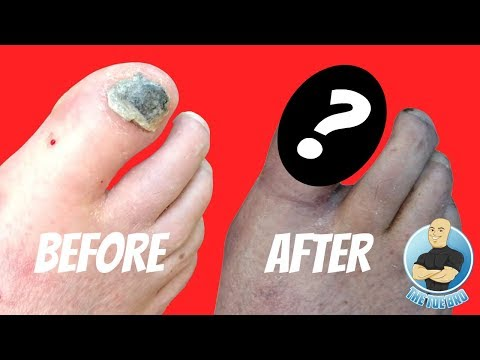 WHAT DOES A TOE LOOK LIKE WITH NO TOENAIL???
