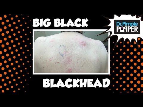 The Return of the Original Big Back Blackheads
