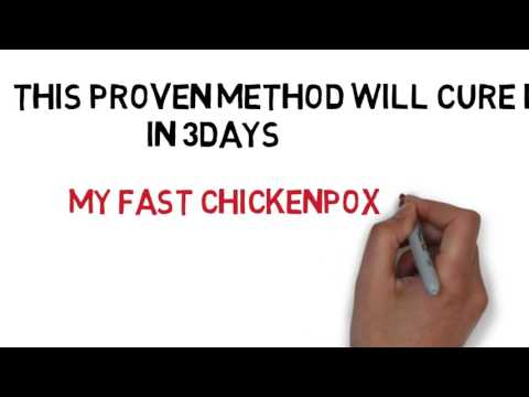 how to stop chicken pox infection - chicken pox cure - how to cure chicken pox scar fast